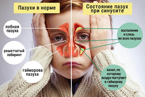 Нормальное состояние пазух и при развитии гайморита