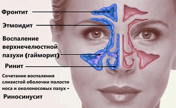 Здоровые и больные пазухи носа