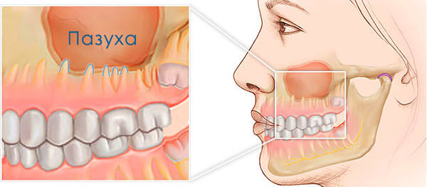 Одна из причин развития гайморита - расположение корней верхних зубов