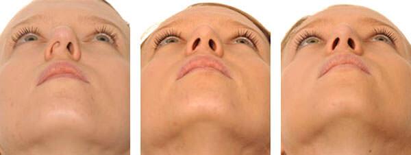 Нарушение физиологии носовых пластин