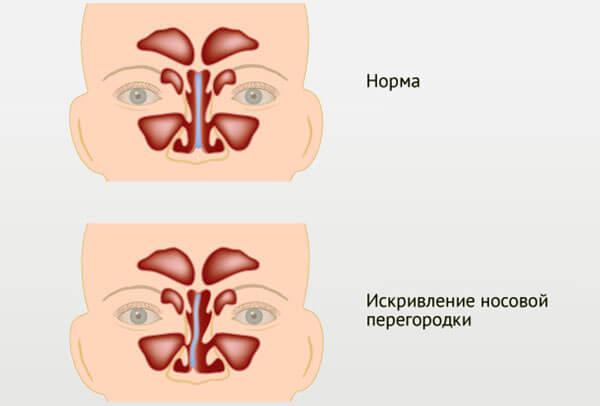 Ровная и искривленная перегородка носа