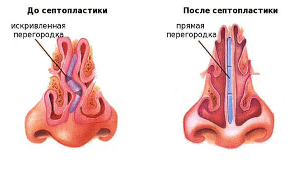 До и после проведения сентопластики