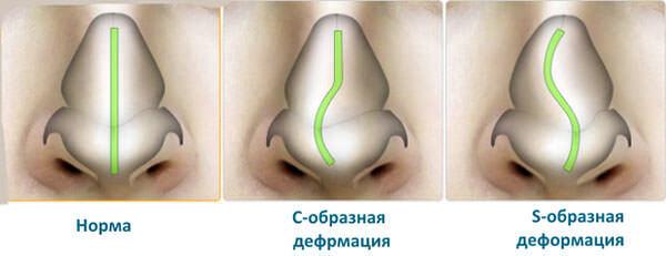 Типы смещения носовой перегородки