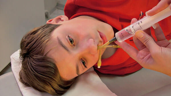 Промывание носа подростку