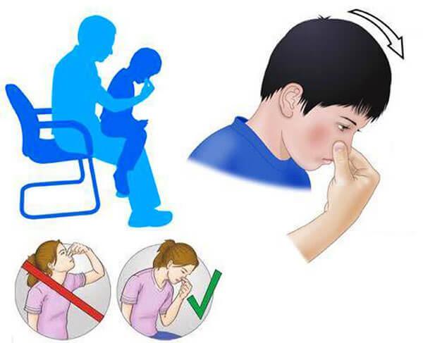 Оказание первой помощи ребенку при кровотечении