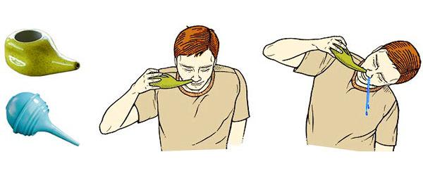 Использование специальной посуды для промывания носа