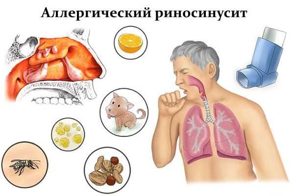 Аллергический риносинусит развивается при постоянном воздействии аллергенов