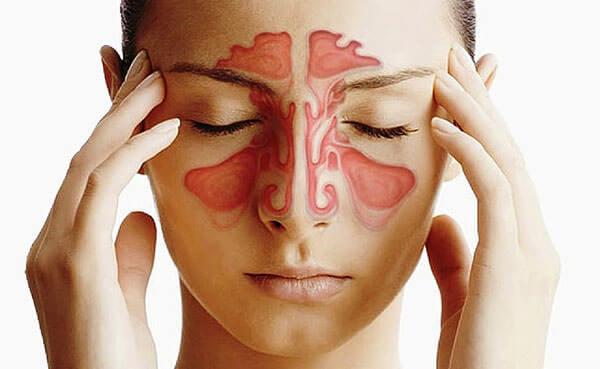 Пазухи, реагирующие на аллергены