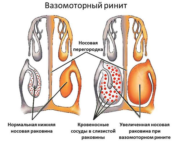 Схема вазомоторноого ринита