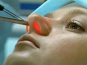 Эндоскопическое исследование носовых пазух