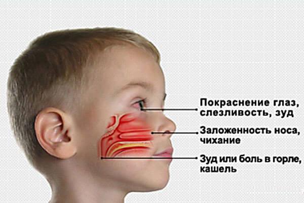Симптомы, указывающие на развитие аллергического ринита
