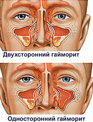 В домашних условиях можно лечить гайморит на начальных стадиях