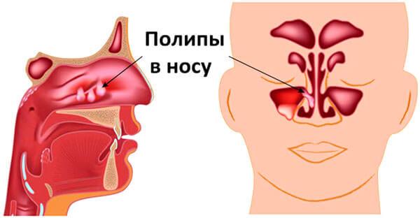 Полипы в носу ребенка могут стать причиной деформации челюсти