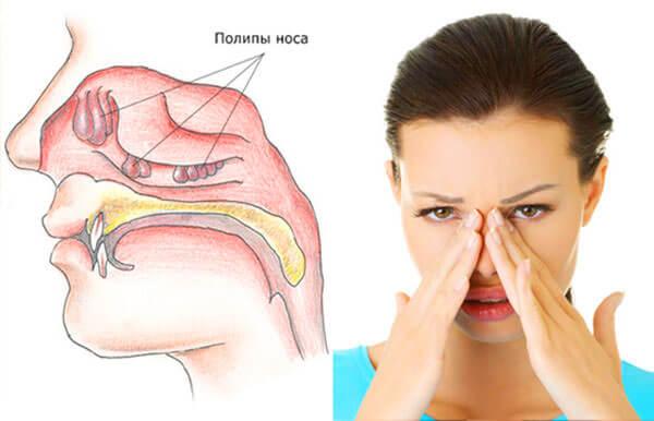 Отсутствие дыхания, постоянная заложенность носа - повод для обращения к доктору