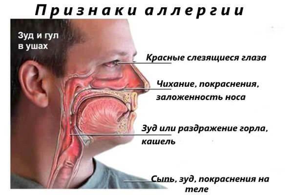 Слезятся глаза при аллергии
