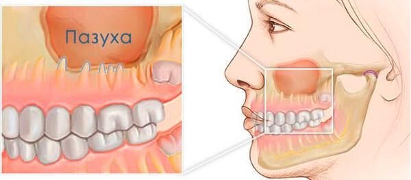 Близкое расположение корней зубов в пазухе - причина развития одонтогенного гайморита