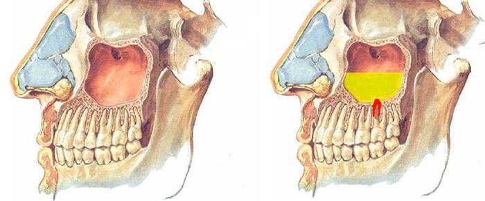 Непраильный рост зуба или воспалительный процесс в корнях