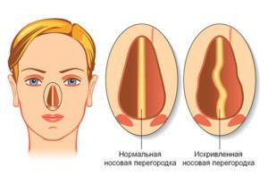 Лишь у 20% людей перегородка носа ровная