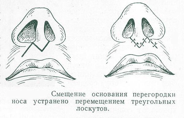 Один из видов операции по выравниванию перегородки