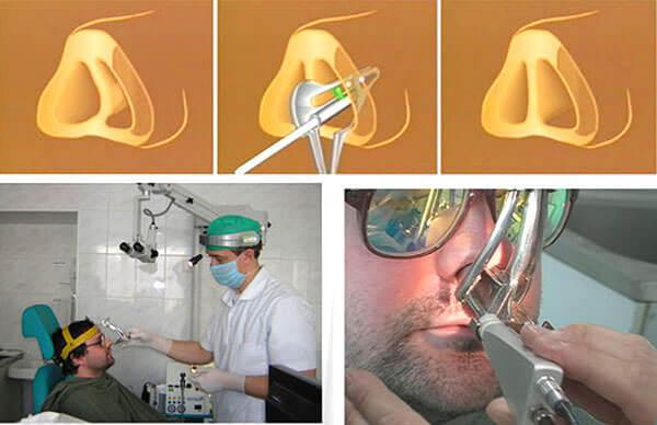 Операция по устранению дефекта носовой перегородки