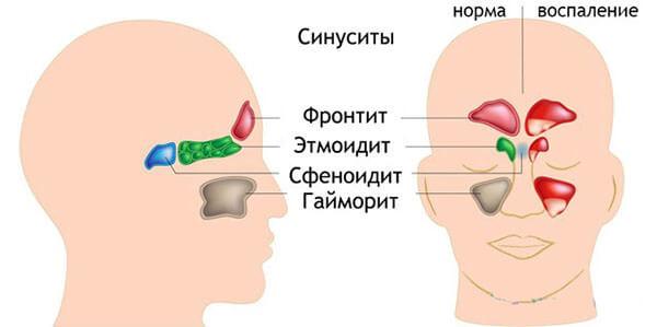 Типы воспалительных реакций в носовых пазухах