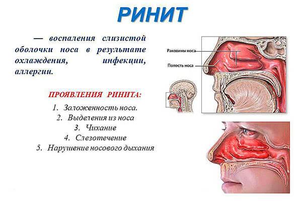 Симптомы развития ринита