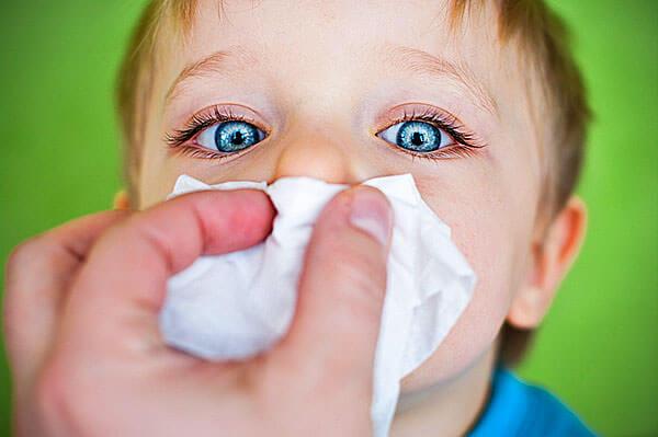 Частые простуды и слабая иммунная система способствуют затяжному насморку