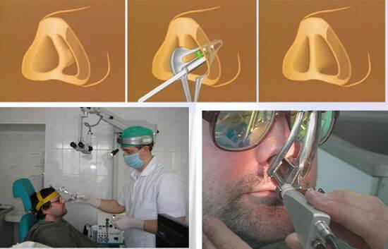 Лазерная септохондрокоррекция