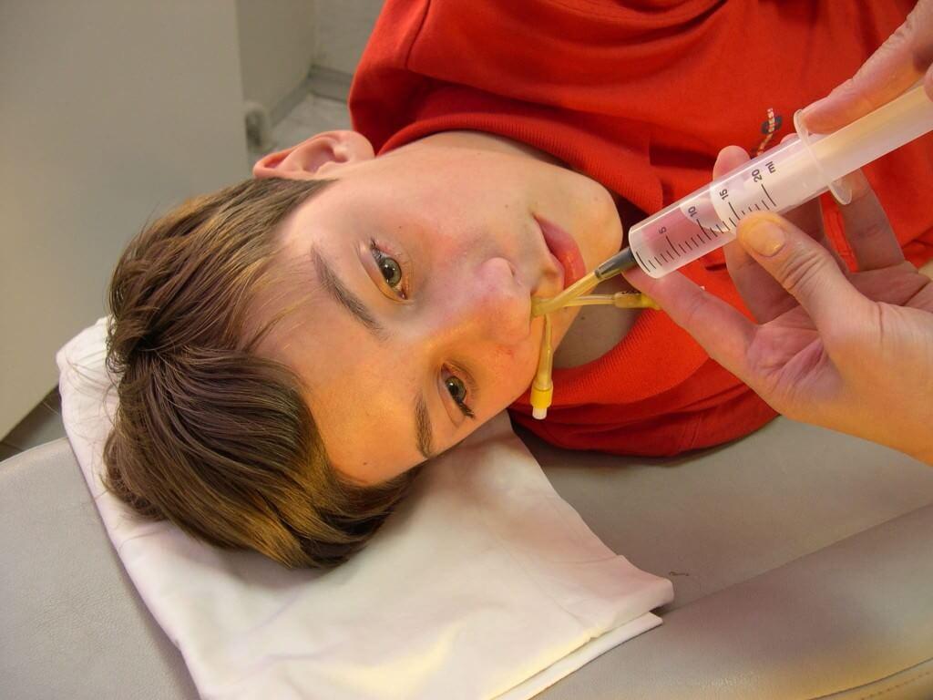 Лечение гайморита у ребенка