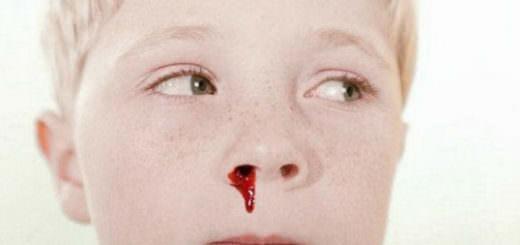 Из носа течет кровь