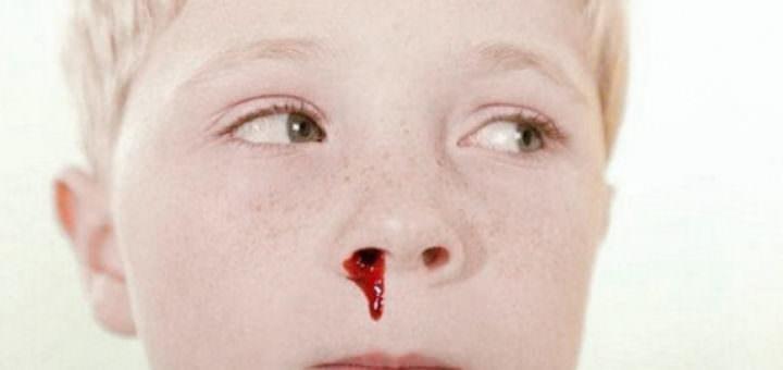 Ребенок ударился десной идет кровь