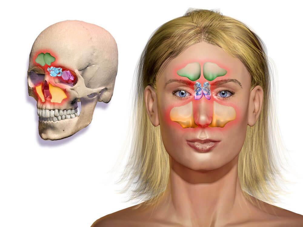 Области воспаления носа