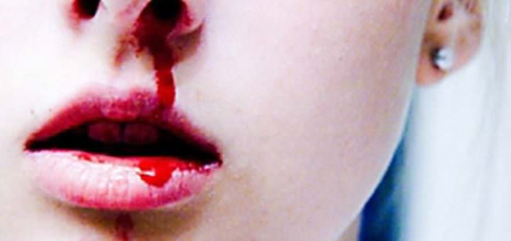 Сонник кровь из носа головокружение