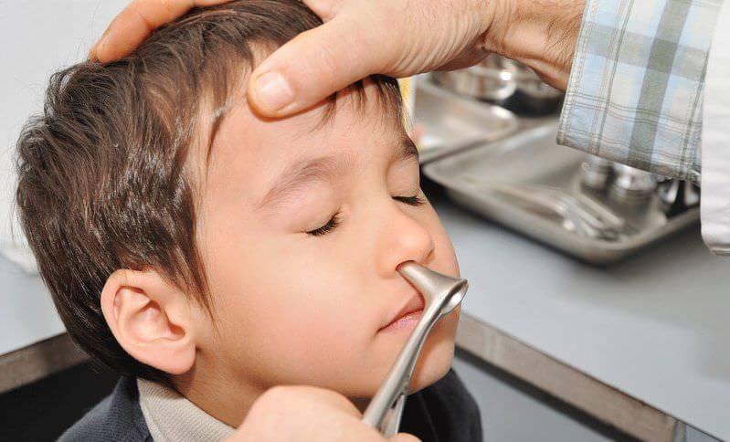 Врач проверяет нос ребенку