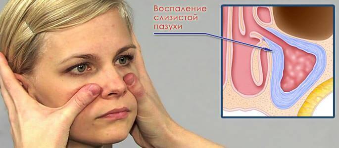 Воспаление слизистой пазухи