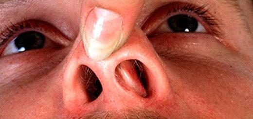 В носу грибок