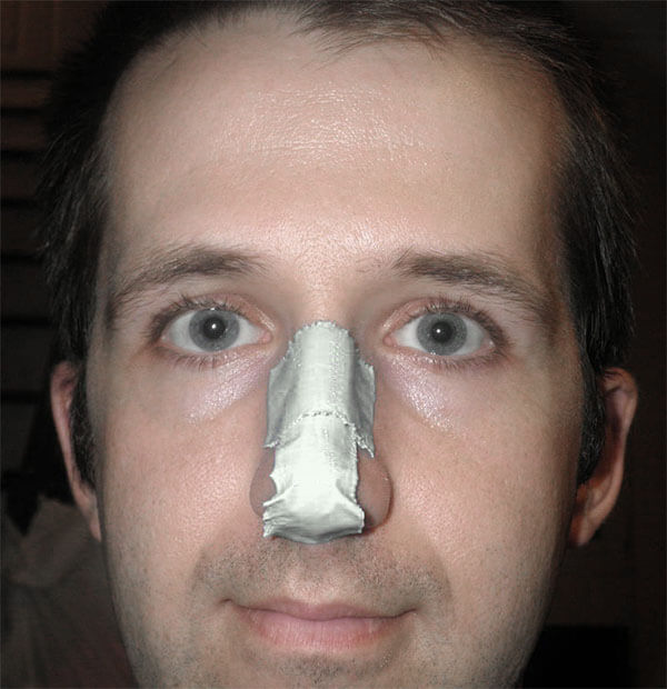 думал Иск за сломанный нос никогда