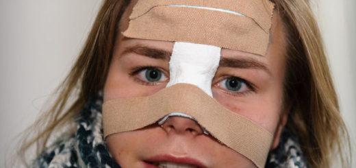 Повреждение носа