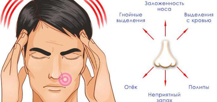Как лечить сильный насморк и заложенность ушей